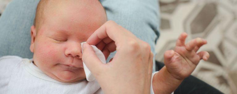 vauvan silmien puhdistus