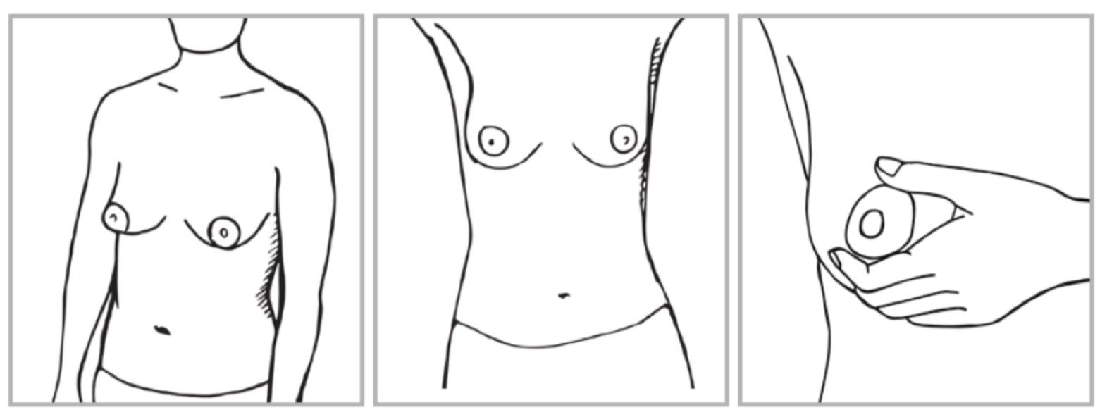 Naisen rinnat sivusta, edestä ja käsi puristamassa nänniä -piirroskuva.