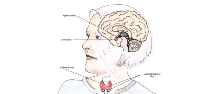 Piirroskuva naisesta, jossa näkyvät kilpirauhasen, lisäkilpirauhasten sekä aivolisäkkeen sijainti.